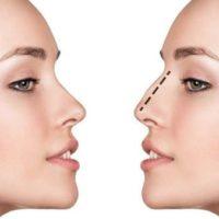 chirurgie esthetique visage rhinoplastie avant apres rhinoplastie ethnique chirurgien maxillo facial stomatologue seine et marne stomatologue pontault docteur ranoarivony