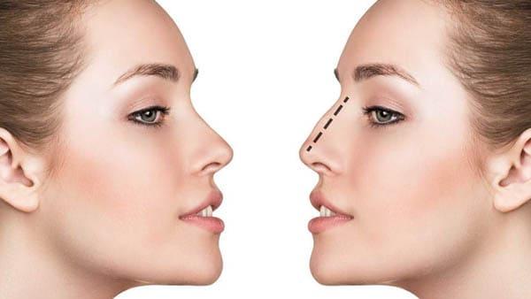 interventions chirurgie maxillo faciale stomatologie pontault stomatologie 94 chirurgien maxillo facial
