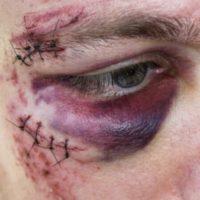 chirurgie nez casse que faire blessure au visage traumatisme de la machoire chirurgien maxillo facial stomatologue 77 stomatologue pontault docteur ranoarivony