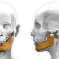 chirurgie orthognatique avant apres osteotomie mandibulaire osteotomie machoire chirurgien maxillo facial stomatologue noisy le grand stomatologue pontault docteur ranoarivony