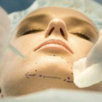 la chirurgie orthognatique avant apres chirurgie menton genioplastie chirurgien maxillo facial stomatologue champigny stomatologue pontault docteur ranoarivony