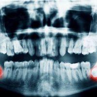 stomatologie dents de sagesse douleur extraction dents de sagesse anesthesie generale locale chirurgien maxillo facial stomatologue hopital dr ranoarivony
