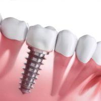 stomatologie implant dentaire prix implant dentaire douleur implantologie dentaire chirurgien maxillo facial stomatologue 94 stomatologue pontault docteur ranoarivony